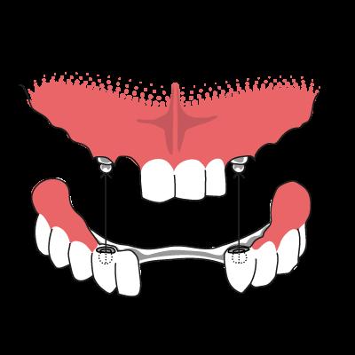 überbrückte zähne schmerzen