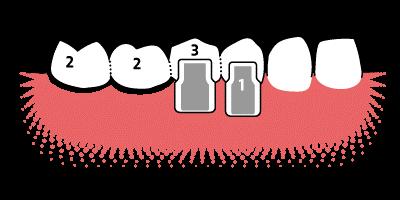 wie geits nach zahn implantat dii zahn machen