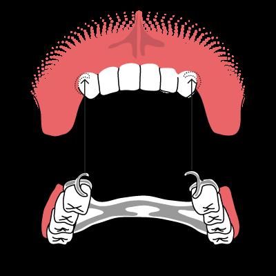 Oberkiefer erfahrungen klammerprothese Klammerprothese (Modellgussprothese)