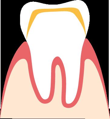 Zahnkronen Heil Und Kostenplan Und Kostenvoranschlag