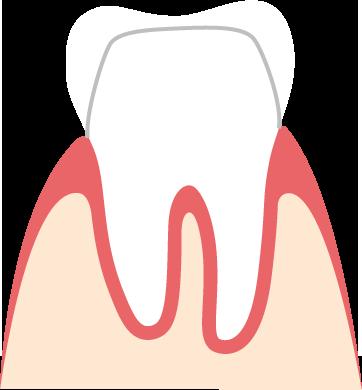 verschluckte zahnkrone wieder einsetzen