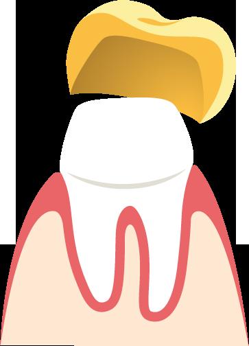 material bei zahnbrücken