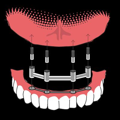Erfahrung implantat zahn Implantate können